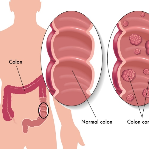 5 Ways To Reduce The Risk Of Colon Cancer
