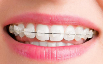 6 Advantages Of Wearing Braces