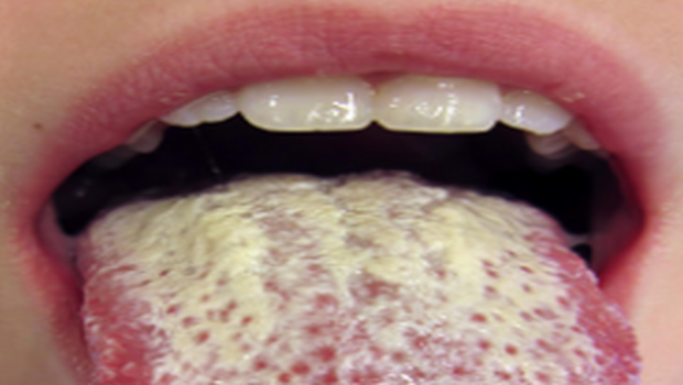 What Is The Best Treatment For Candida?
