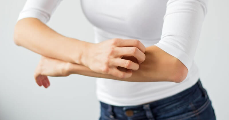 Knowing Of The Ways Siddha Medicine Helps In Treating Psoriasis